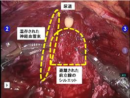 ロボット支援前立腺全摘除術(術部の様子)