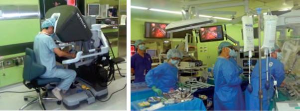 ロボット支援下胃切除術の様子