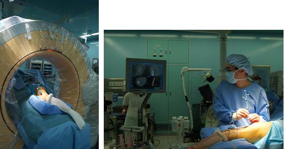 写真左:O-arm 、 写真右:ナビゲーションによる部位の確認