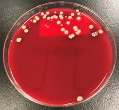 写真2. 培養同定による起因菌の検索
